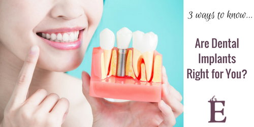 Three Ways to Know if Dental Implants are Right for You