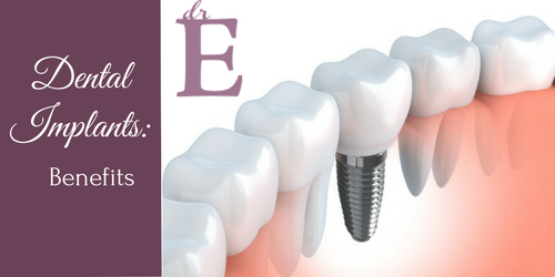 The Many Benefits of Dental Implants…and Why They May Be the Best Choice for You!