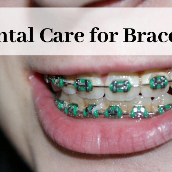 Dental Care for Braces