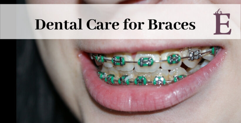 Dental Care for Braces