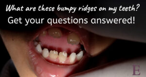 questions-about-teeth