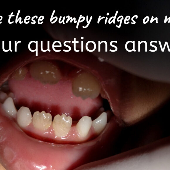 Five Common Questions About Your Teeth (and the Answers!)