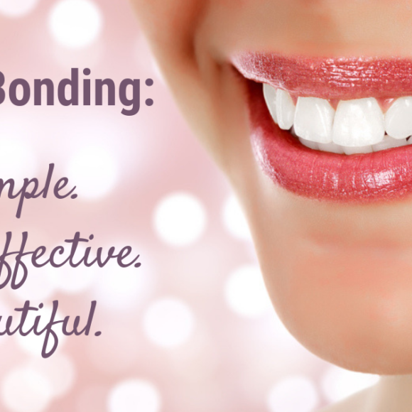 What is Tooth Bonding?