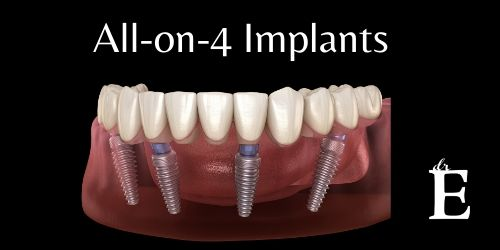 All-on-4 Implants in Celebration of the 4th of July!