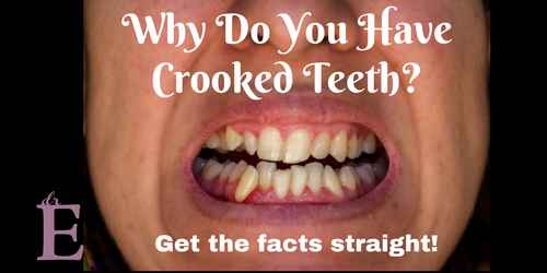 What Causes Crooked Teeth? Dr. E Helps You Get the Facts Straight