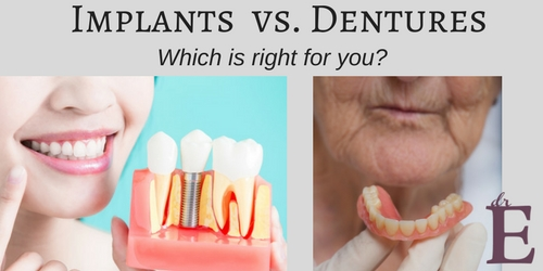Dental Implants Versus Dentures