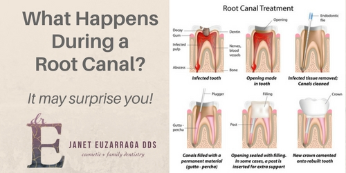 What Happens During a Root Canal?