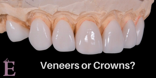 What's the Difference Between Dental Veneers and Crowns?