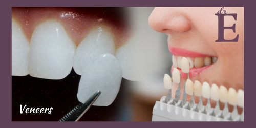 Beautify Your Smile With Dental Veneers